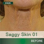 Saggy_01bf