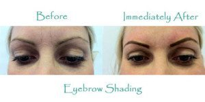 Skin-Clinic-Margate-eyebrowshading