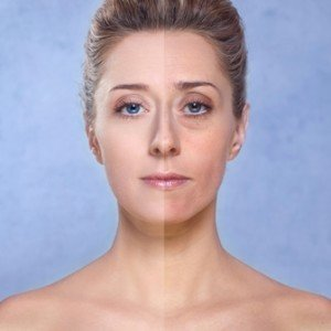 How To Seriously Look 5 Years Younger In One Hour By Skin Clinic Margate Presented By Body Bliss Health & Beauty Retreat - Call Us On (07) 3283 3368