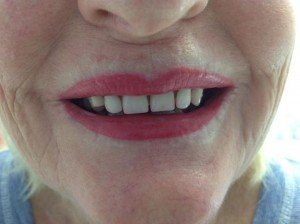 Our client Maureen's third treatment of Cosmetic Lip Tattooing
